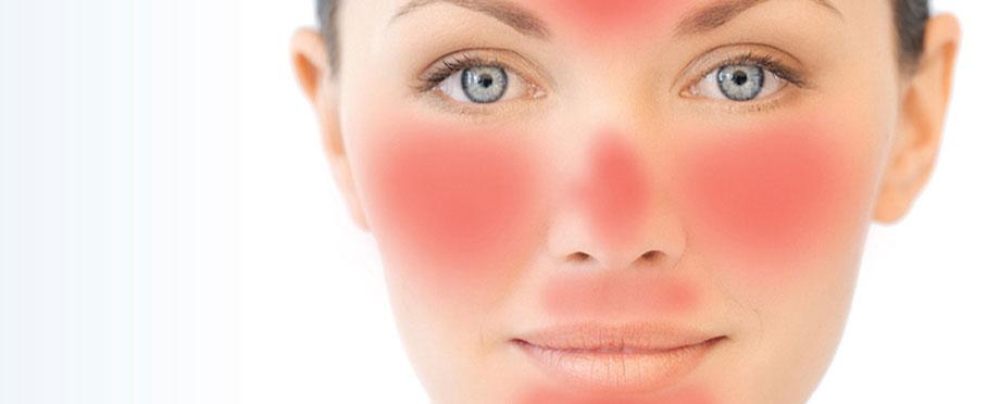 Kortison Heißes Rotes Gesicht