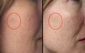 Prečo používať sérum s vitamínom C ešte pred cvičením tvárovej gymnastiky  d4066b4054